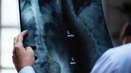 Hệ thống y tế không được bảo vệ để lộ dữ liệu trên hàng triệu bệnh nhân